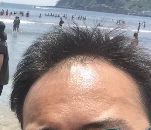 ハゲ湘南の海