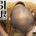 AGA治療6ヶ月で頭頂部に変化が!【半年間の経過報告】